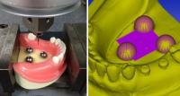 Accuracy of optical scans and conventional silicone impressions compared